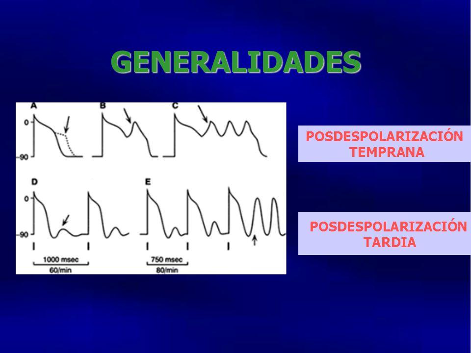 GENERALIDADES POSDESPOLARIZACIÓN TEMPRANA POSDESPOLARIZACIÓN TARDIA