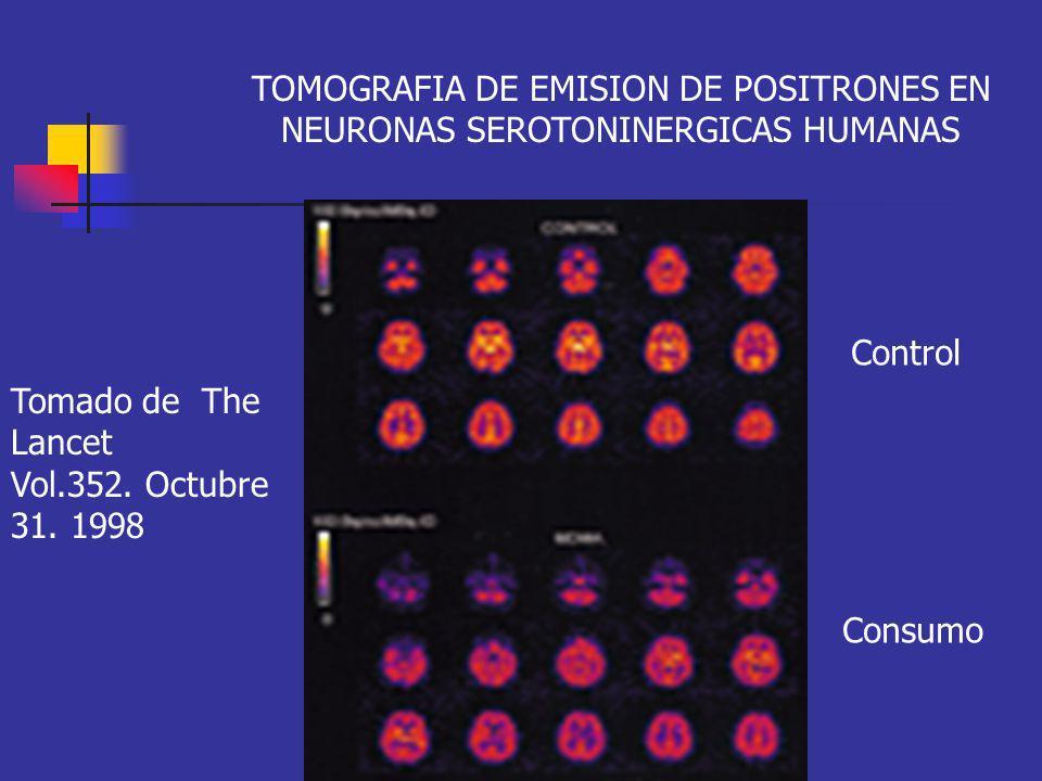 TOMOGRAFIA DE EMISION DE POSITRONES EN NEURONAS SEROTONINERGICAS HUMANAS Tomado de The Lancet Vol.352. Octubre 31. 1998 Control Consumo