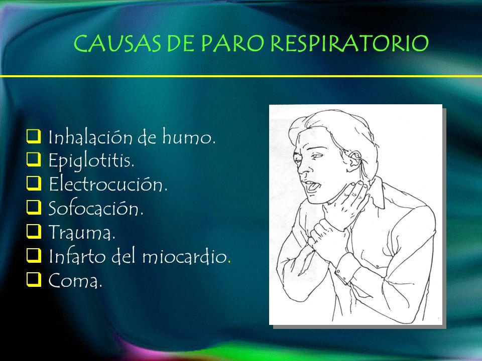 Inhalación de humo. Epiglotitis. Electrocución. Sofocación. Trauma. Infarto del miocardio. Coma. CAUSAS DE PARO RESPIRATORIO