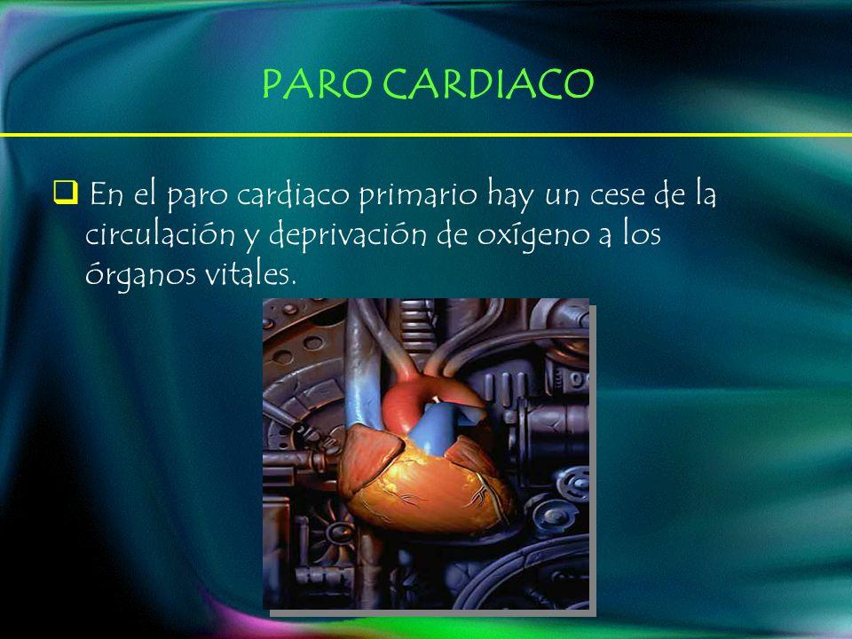 En el paro cardiaco primario hay un cese de la circulación y deprivación de oxígeno a los órganos vitales. PARO CARDIACO