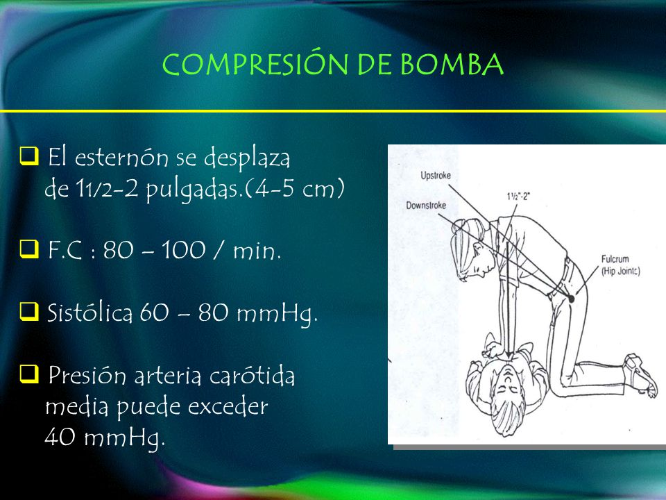 El esternón se desplaza de 1 1/2 -2 pulgadas.(4-5 cm) F.C : 80 – 100 / min.
