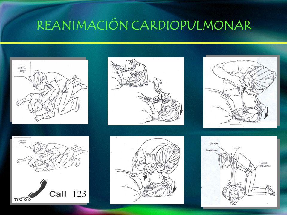 123 REANIMACIÓN CARDIOPULMONAR