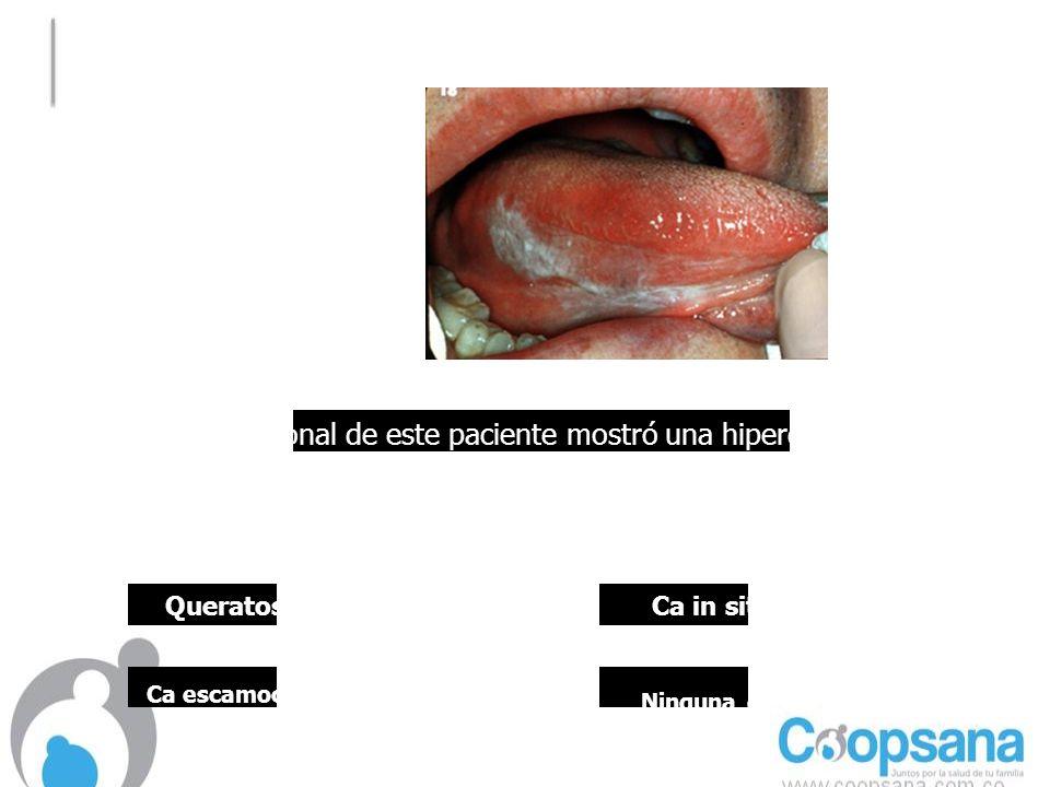 La biopsia incisional de este paciente mostró una hiperqueratosis sin displasia, anaplasia o invasión al corion.