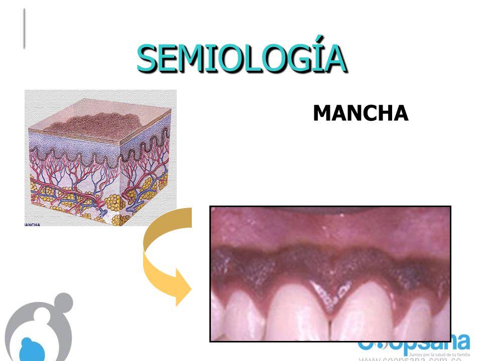 SEMIOLOGÍASEMIOLOGÍA MANCHAMANCHA