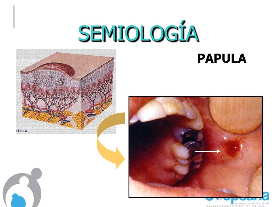 SEMIOLOGÍASEMIOLOGÍA PAPULAPAPULA