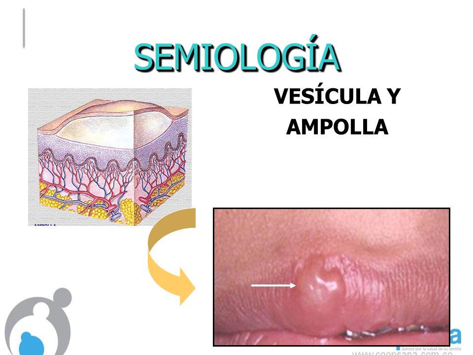 SEMIOLOGÍASEMIOLOGÍA VESÍCULA Y AMPOLLA AMPOLLA