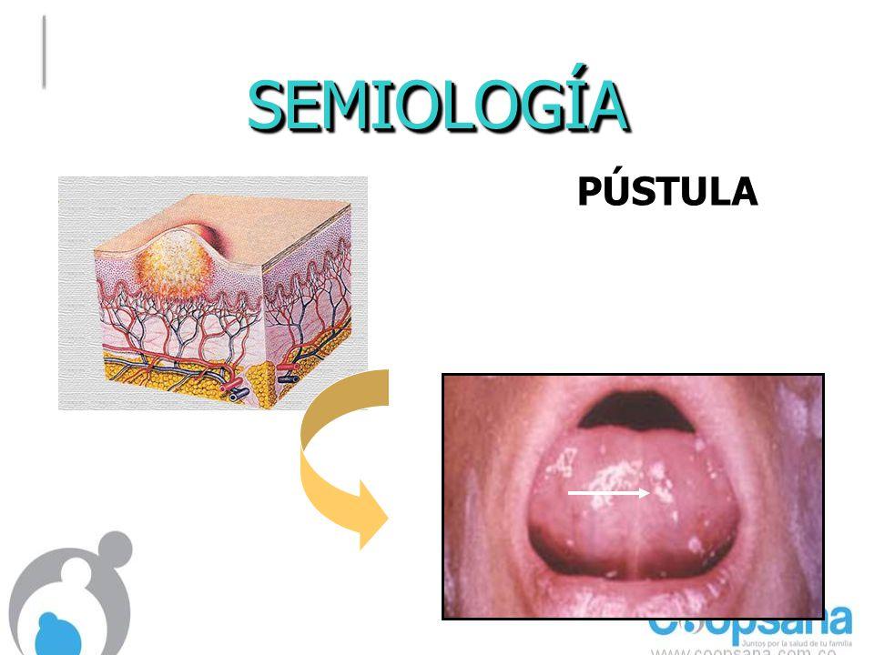 SEMIOLOGÍASEMIOLOGÍA PÚSTULA