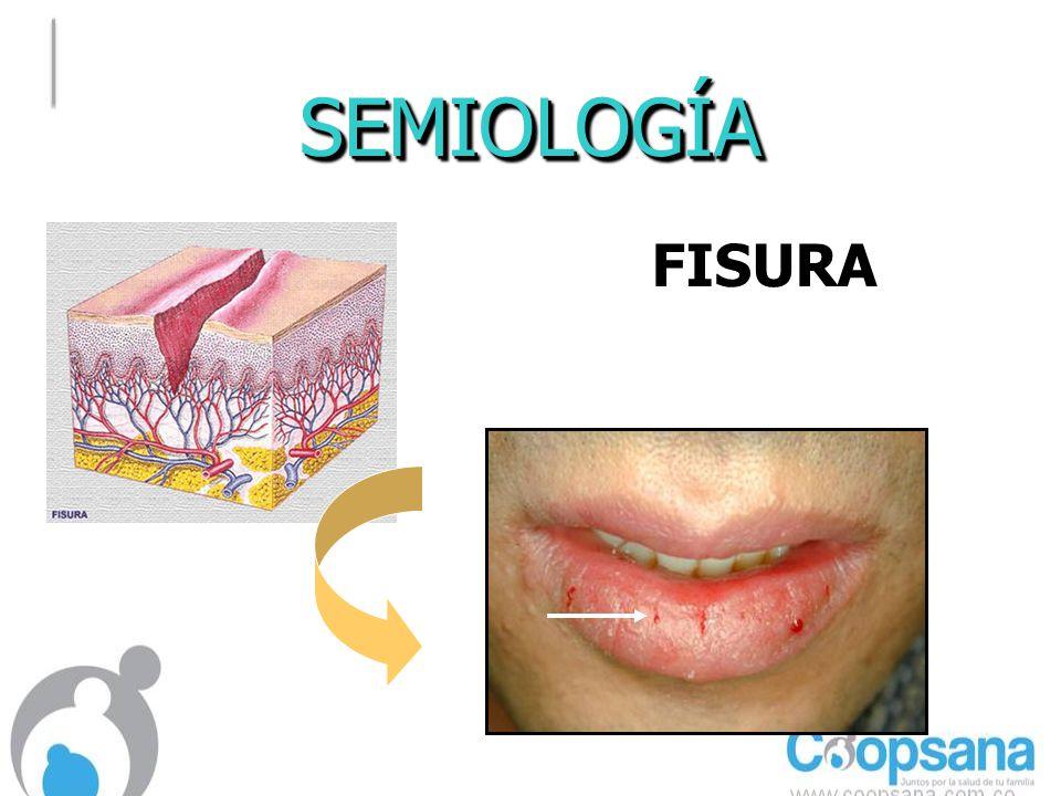 SEMIOLOGÍASEMIOLOGÍA FISURAFISURA