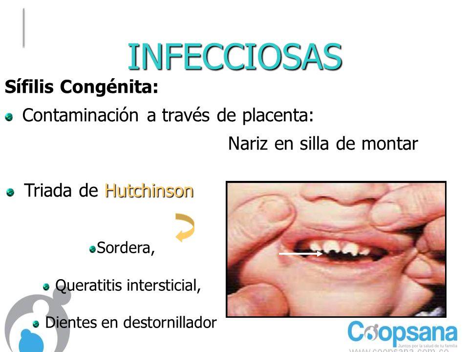 INFECCIOSAS Sífilis Congénita: Contaminación a través de placenta: Nariz en silla de montar Hutchinson Triada de Hutchinson Sordera, Queratitis intersticial, Dientes en destornillador