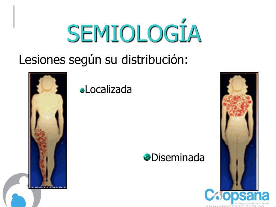 SEMIOLOGÍA Lesiones según su distribución: Localizada DiseminadaDiseminada