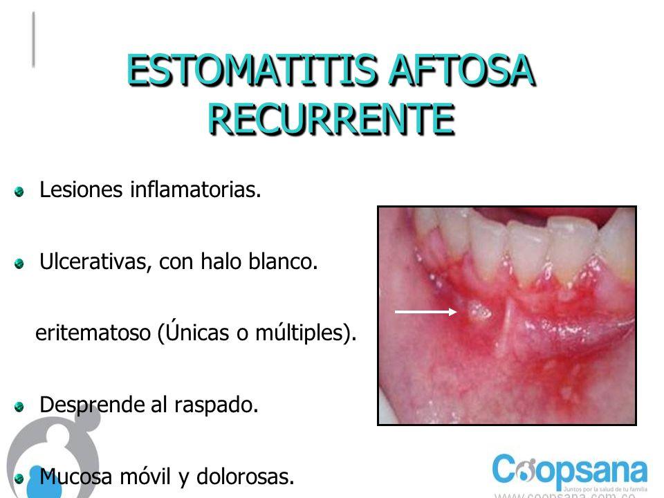 ESTOMATITIS AFTOSA RECURRENTE RECURRENTE Lesiones inflamatorias.