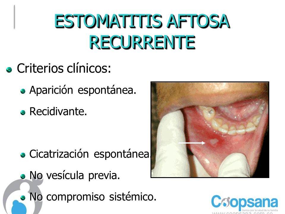 ESTOMATITIS AFTOSA RECURRENTE RECURRENTE Criterios clínicos: Aparición espontánea.