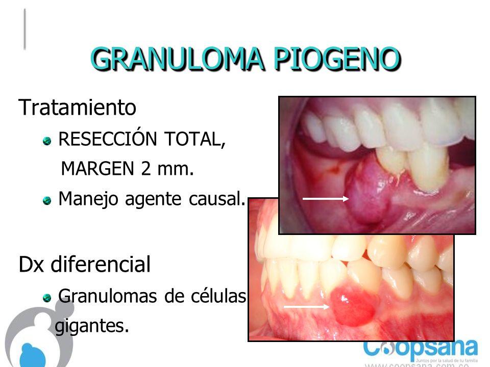 GRANULOMA PIOGENO Tratamiento RESECCIÓN TOTAL, MARGEN 2 mm.