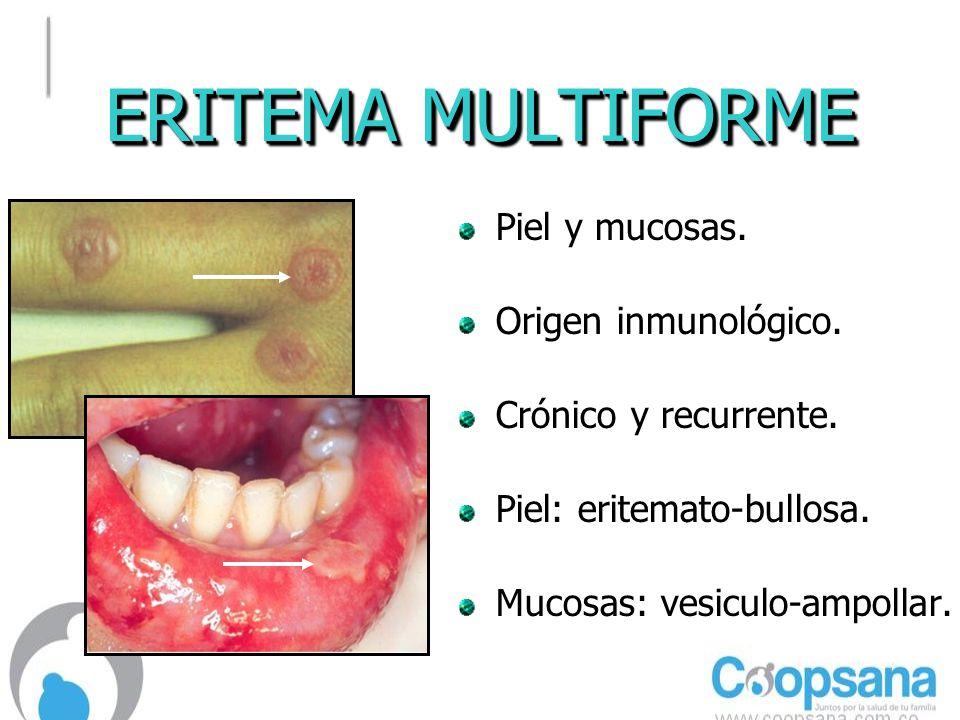 ERITEMA MULTIFORME Piel y mucosas.Origen inmunológico.