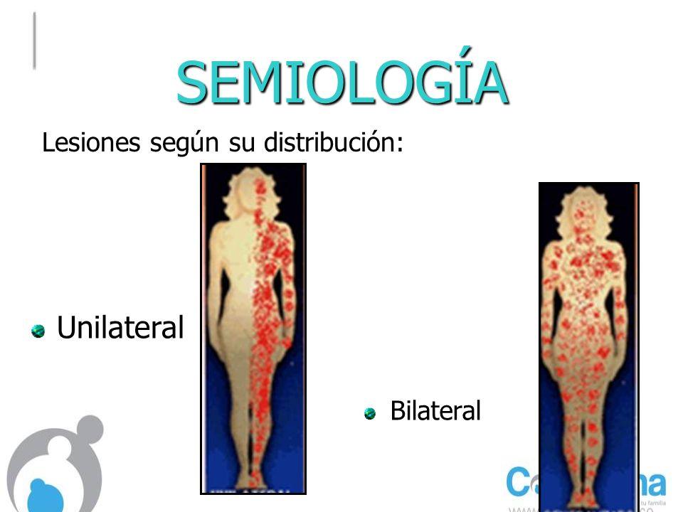 SEMIOLOGÍA BilateralBilateral Unilateral