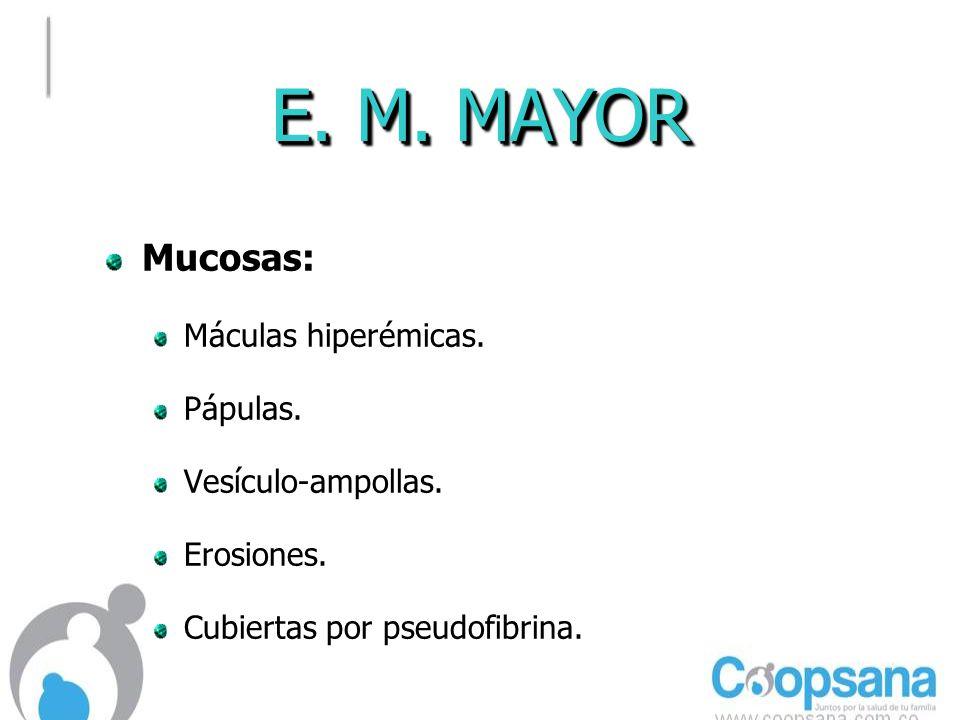 E.M. MAYOR Mucosas: Máculas hiperémicas. Pápulas.