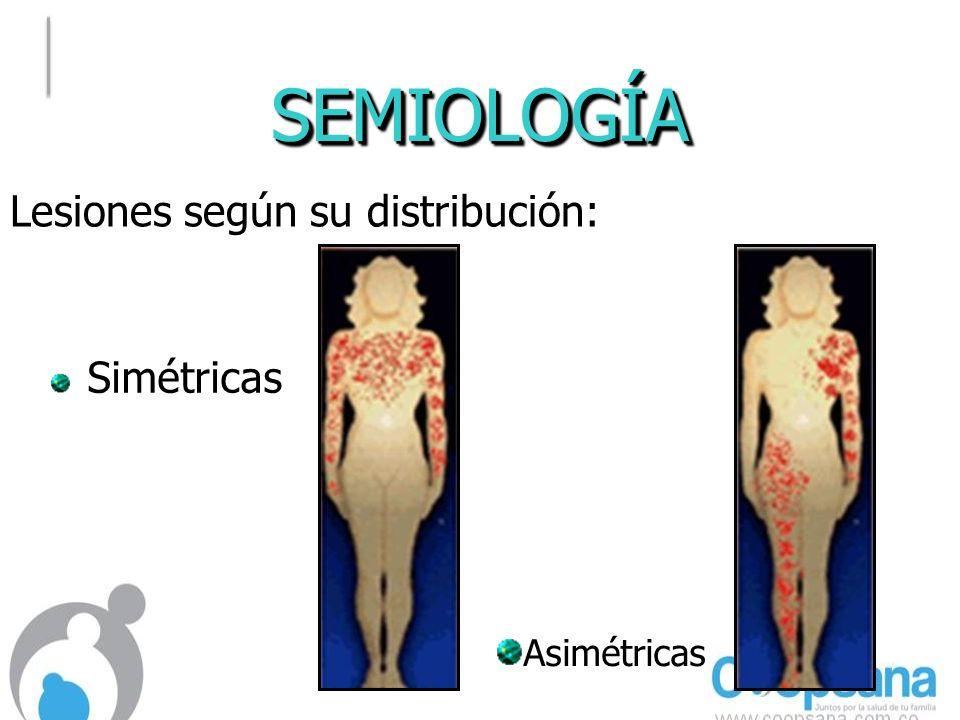 Solamente con la apariencia clínica y localización de la lesión, ¿Cuál es el diagnóstico probable.