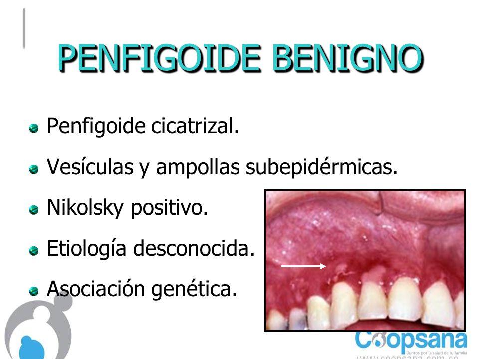 PENFIGOIDE BENIGNO Penfigoide cicatrizal.Vesículas y ampollas subepidérmicas.