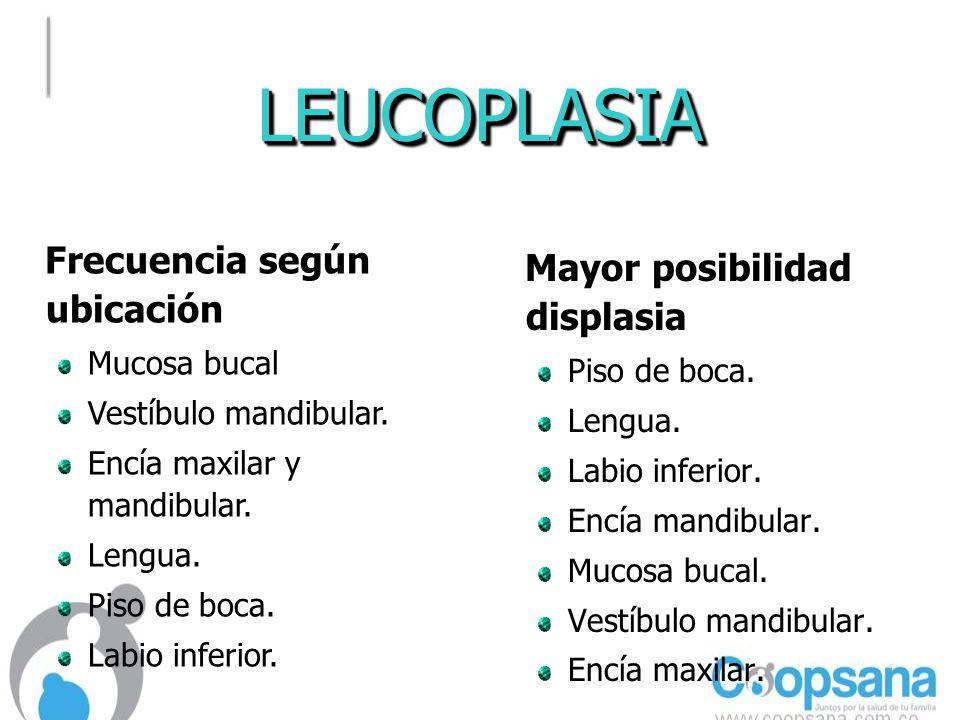 LEUCOPLASIALEUCOPLASIA Mayor posibilidad displasia Mayor posibilidad displasia Piso de boca.