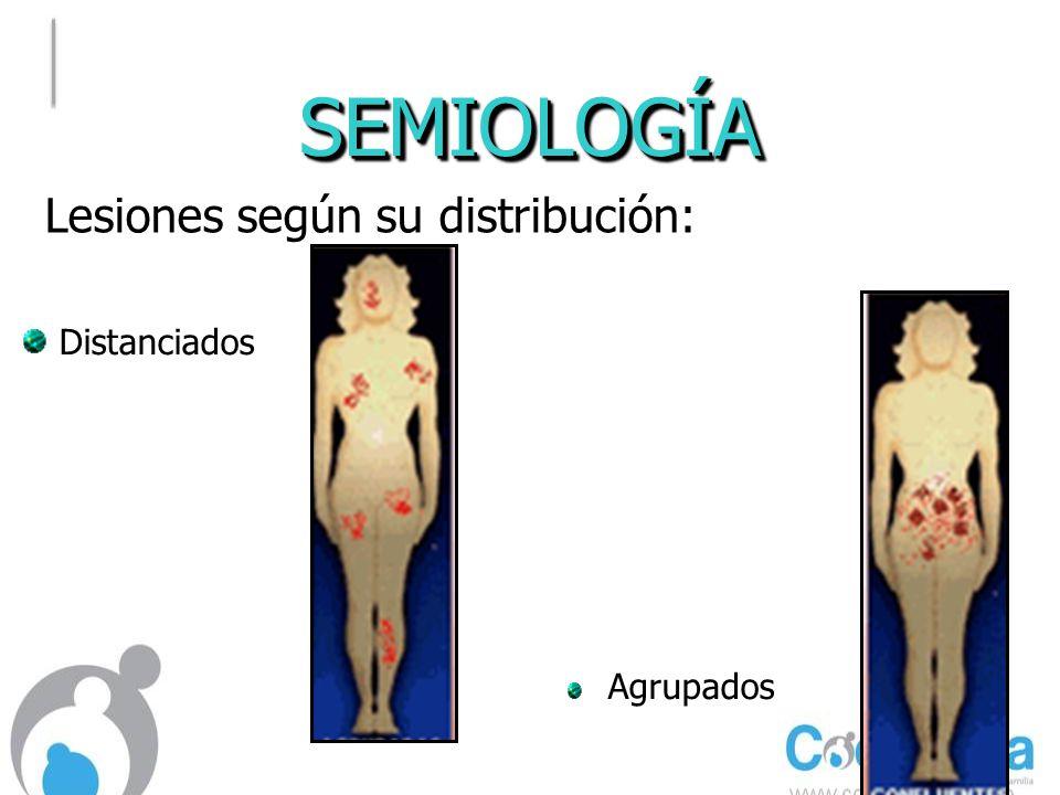 INFECCIOSAS En boca: Sífilis Secundaria:.Se presenta de 3 a 4 meses después.
