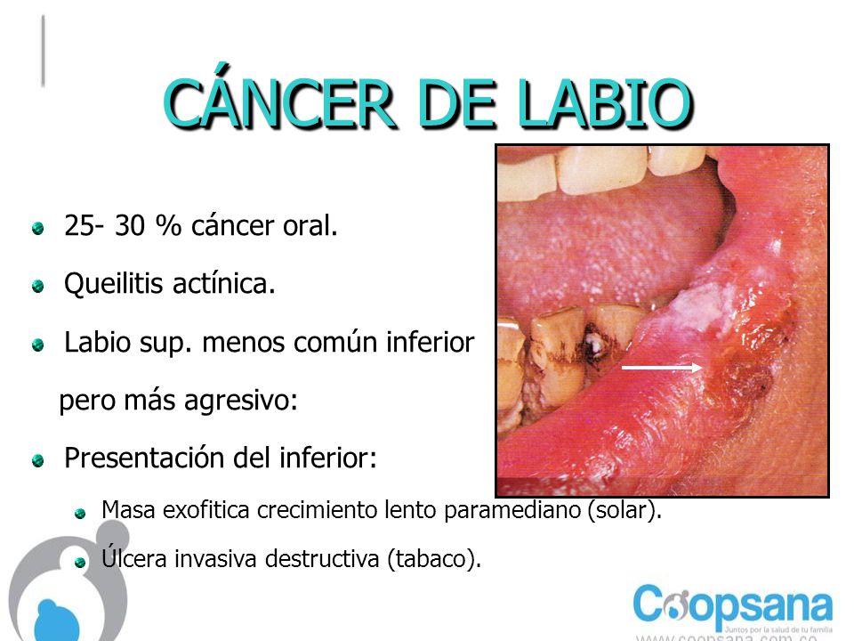 CÁNCER DE LABIO 25- 30 % cáncer oral.Queilitis actínica.