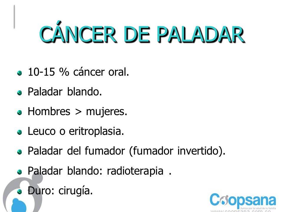 CÁNCER DE PALADAR 10-15 % cáncer oral.Paladar blando.
