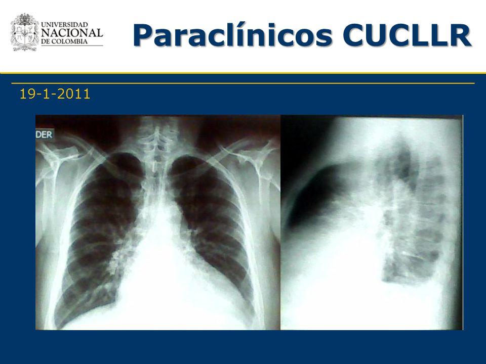 Paraclínicos CUCLLR 19-1-2011