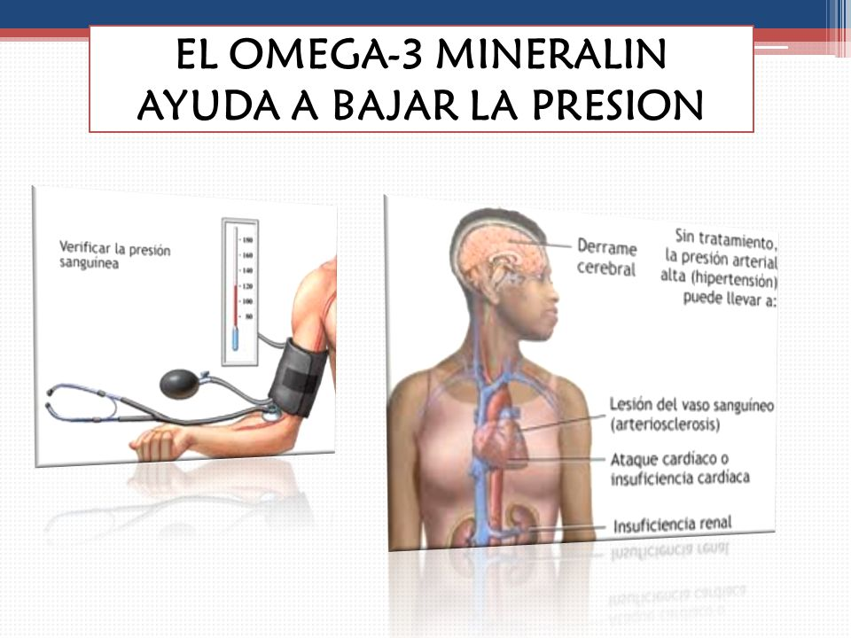 EL OMEGA-3 BAJA LA PRESION