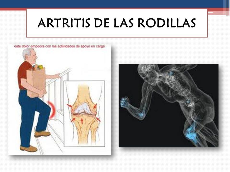 ARTRITIS DE ARTICULACIONES