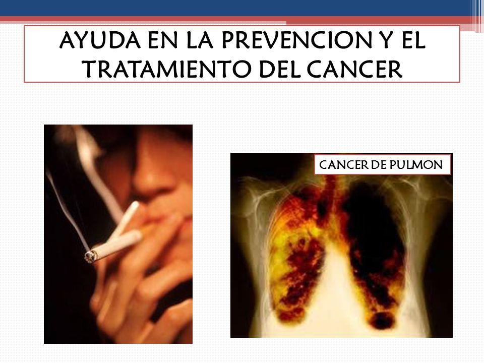 AYUDA EN LA PREVENCION Y EL TRATAMIENTO DEL CANCER CANCER DE COLON