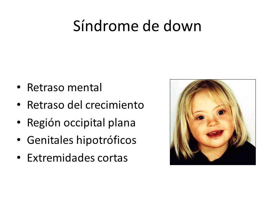 Retraso mental Retraso del crecimiento Región occipital plana Genitales hipotróficos Extremidades cortas