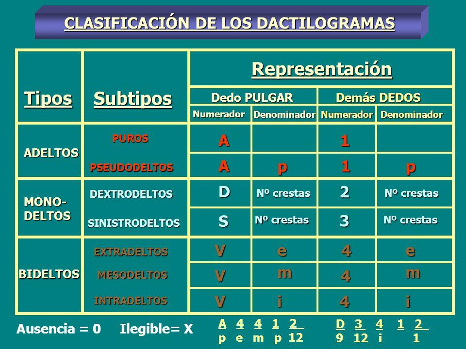 CLASIFICACIÓN DE LOS DACTILOGRAMAS A 4 4 1 2 p e m p 12 D 3 4 1 2 9 12 i 1 Ausencia = 0 Ilegible= X Tipos ADELTOS MONO- DELTOS BIDELTOS Subtipos PUROS