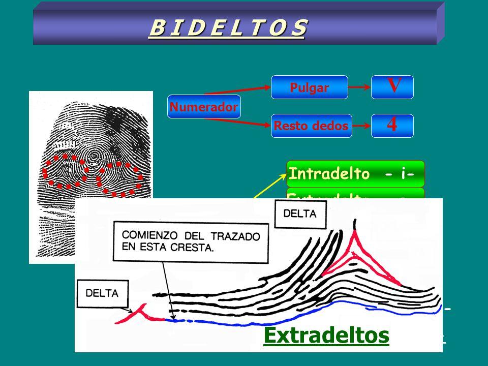 Pulgar Resto dedos V 4 Intradelto - i- B I D E L T O S Extradelto - e - Mesodelto - m - Poco intradelto -(i) - Muy intradelto - i - Poco extradelto -