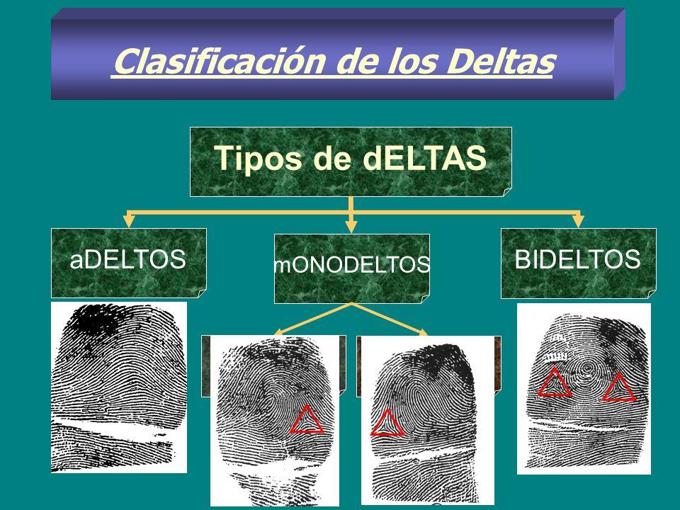 Clasificación de los Deltas aDELTOS mONODELTOS BIDELTOS Tipos de dELTAS Dextreo- DELTO Sinistro- delto