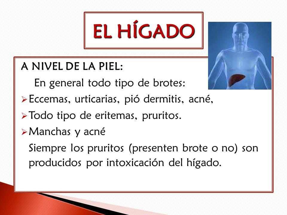 A NIVEL DE LA PIEL: En general todo tipo de brotes: Eccemas, urticarias, pió dermitis, acné, Todo tipo de eritemas, pruritos. Manchas y acné Siempre l