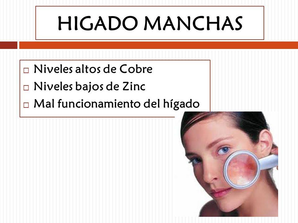 HIGADO MANCHAS Niveles altos de Cobre Niveles bajos de Zinc Mal funcionamiento del hígado