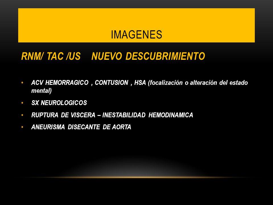 IMAGENES RNM/ TAC /US NUEVO DESCUBRIMIENTO ACV HEMORRAGICO, CONTUSION, HSA (focalización o alteración del estado mental) SX NEUROLOGICOS RUPTURA DE VI