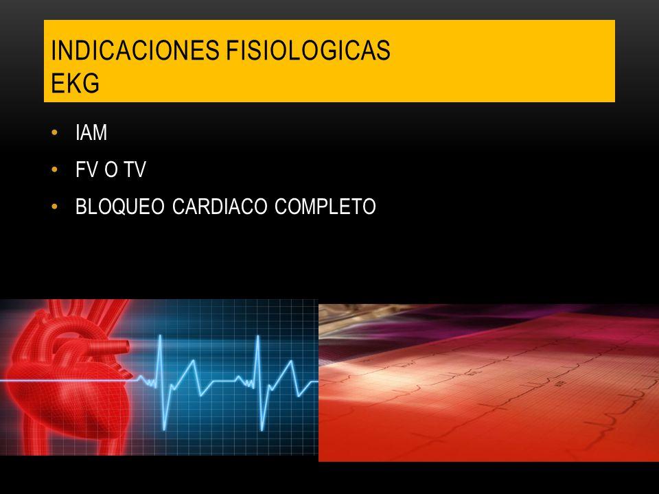 IAM FV O TV BLOQUEO CARDIACO COMPLETO INDICACIONES FISIOLOGICAS EKG