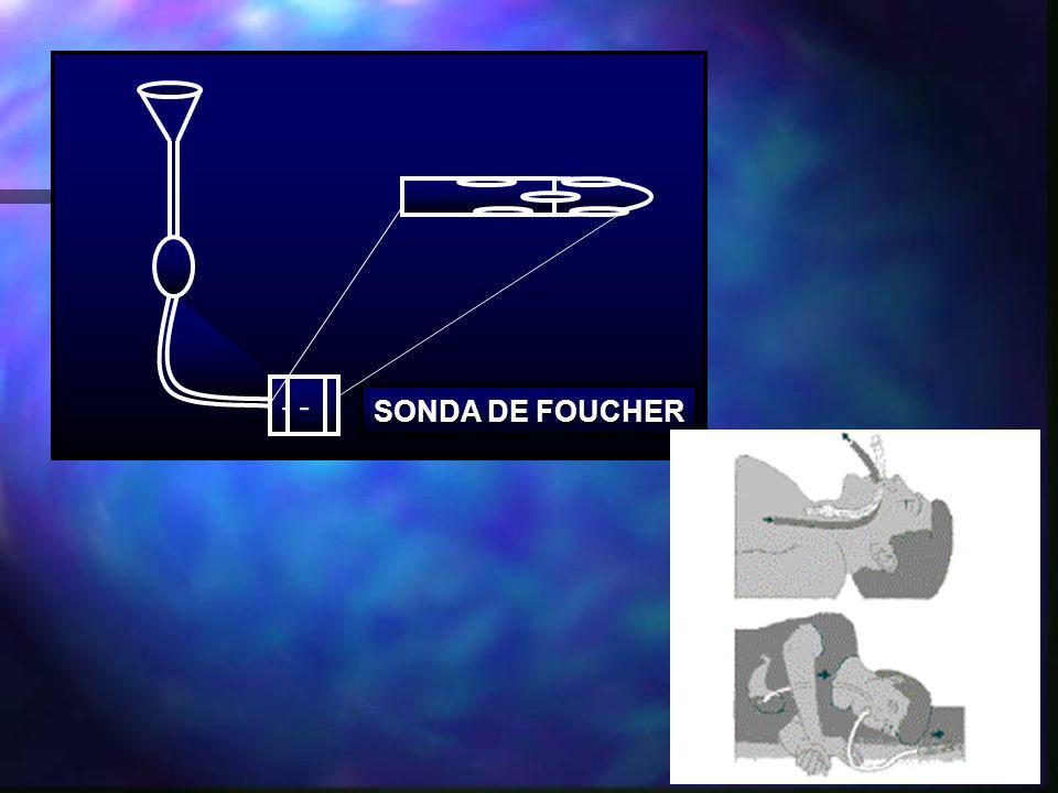 --- SONDA DE FOUCHER