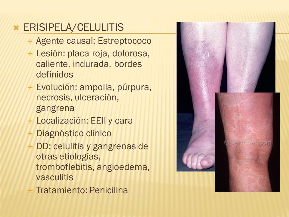  ERISIPELA/CELULITIS  Agente causal: Estreptococo  Lesión: placa roja, dolorosa, caliente, indurada, bordes definidos  Evolución: ampolla, púrpura, necrosis, ulceración, gangrena  Localización: EEII y cara  Diagnóstico clínico  DD: celulitis y gangrenas de otras etiologías, tromboflebitis, angioedema, vasculitis  Tratamiento: Penicilina