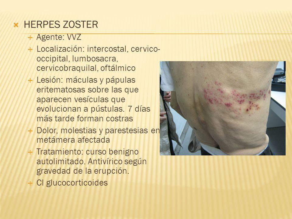  HERPES ZOSTER  Agente: VVZ  Localización: intercostal, cervico- occipital, lumbosacra, cervicobraquilal, oftálmico  Lesión: máculas y pápulas eritematosas sobre las que aparecen vesículas que evolucionan a pústulas.