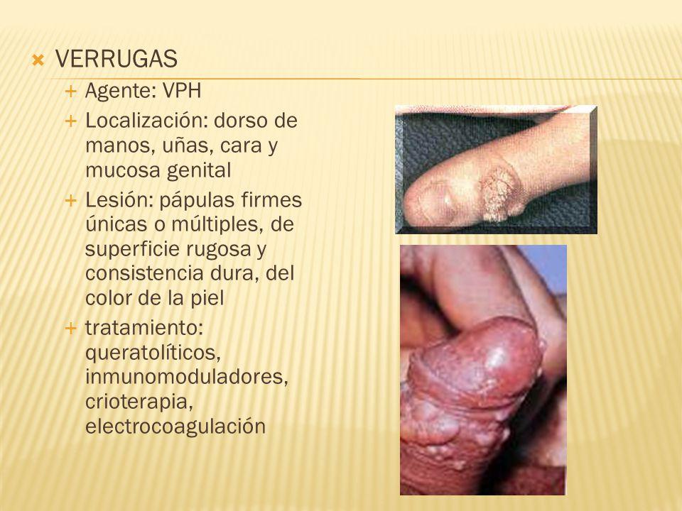  VERRUGAS  Agente: VPH  Localización: dorso de manos, uñas, cara y mucosa genital  Lesión: pápulas firmes únicas o múltiples, de superficie rugosa y consistencia dura, del color de la piel  tratamiento: queratolíticos, inmunomoduladores, crioterapia, electrocoagulación