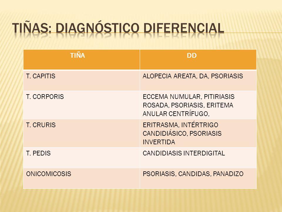 TIÑA DD T.CAPITISALOPECIA AREATA, DA, PSORIASIS T.