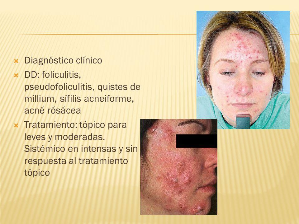  Diagnóstico clínico  DD: foliculitis, pseudofoliculitis, quistes de millium, sífilis acneiforme, acné rósácea  Tratamiento: tópico para leves y moderadas.