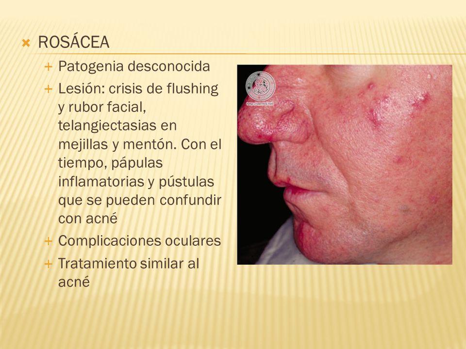  ROSÁCEA  Patogenia desconocida  Lesión: crisis de flushing y rubor facial, telangiectasias en mejillas y mentón.