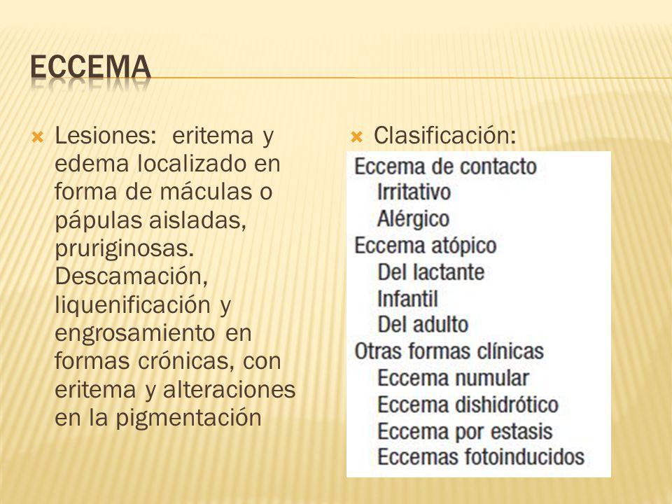  Lesiones: eritema y edema localizado en forma de máculas o pápulas aisladas, pruriginosas.