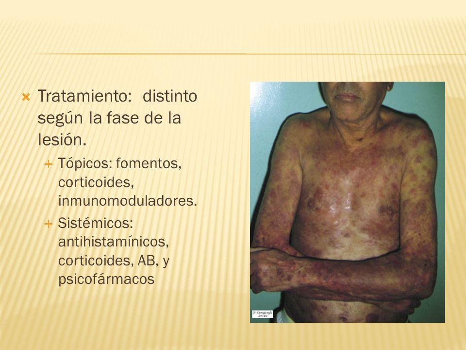  Tratamiento: distinto según la fase de la lesión.