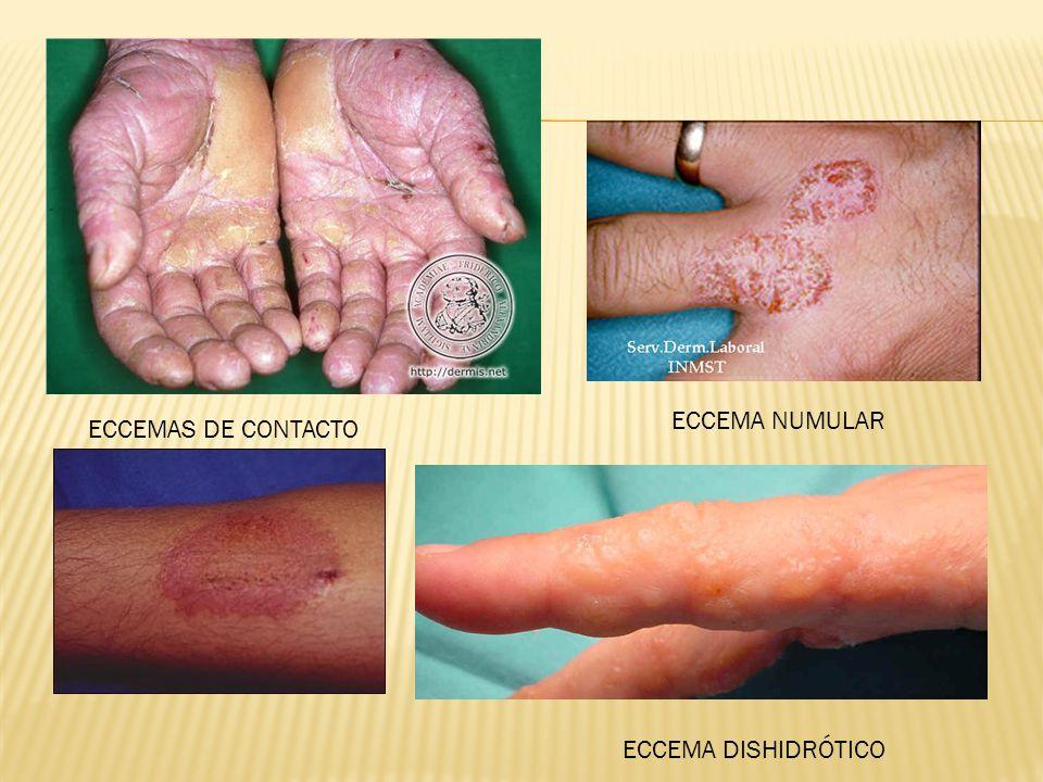 ECCEMA NUMULAR ECCEMA DISHIDRÓTICO ECCEMAS DE CONTACTO