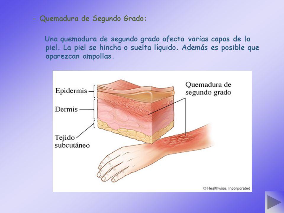 - Quemadura de Segundo Grado: Una quemadura de segundo grado afecta varias capas de la piel. La piel se hincha o suelta líquido. Además es posible que