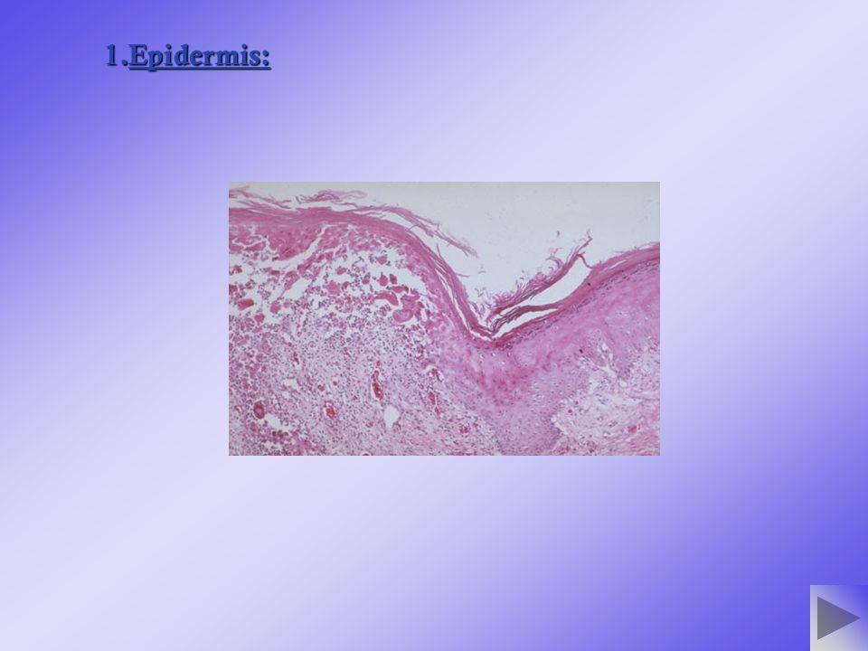 Es una enfermedad contagiosa de la piel causada por el parásito llamado Sarcoptes Scabiei.